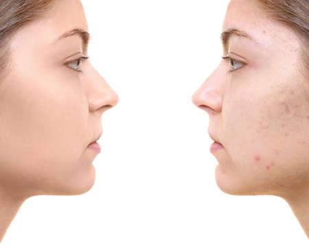 Young woman before and after acne treatment on white background. Skin care concept Stock fotó
