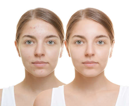 Young woman before and after acne treatment on white background. Skin care concept Foto de archivo