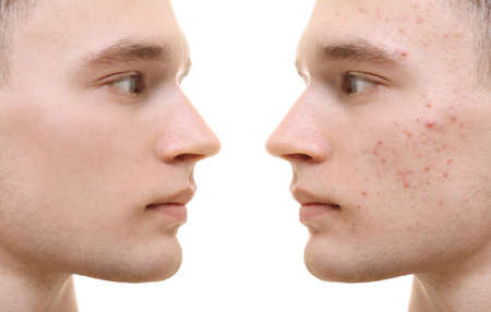 Young man before and after acne treatment on white background. Skin care concept Фото со стока