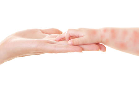 Mother holding hand of little child with red rash on white background, closeup. Concept of babies allergies