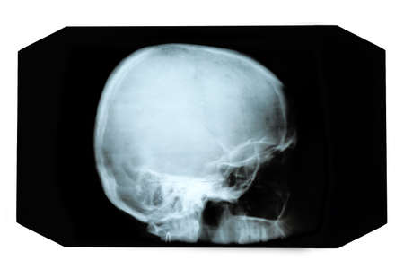 X-ray picture of skull
