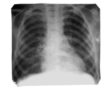 X-Ray image isolated on white Stok Fotoğraf