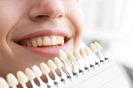 Mujer joven en la oficina del dentista comprobando y seleccionando el color de los dientes