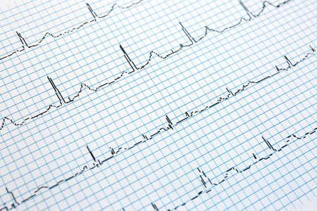 Electrocardiogram in paper form, closeup