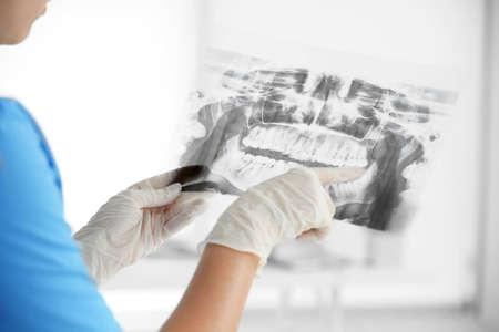 Dentista femminile che tiene una radiografia dentale Archivio Fotografico - 96944699