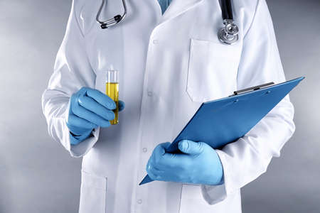 Doctor holding clipboard and test tube with urine, closeup
