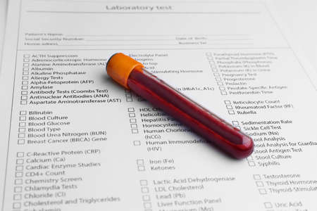 Form to fill in with results of blood test in glass tube Stock Photo