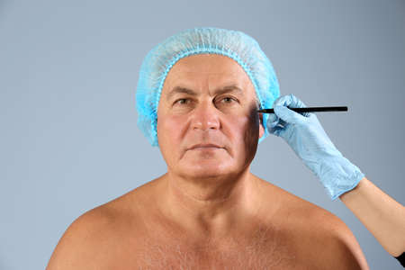 Plastic surgery concept. Hand marking male face on grey background