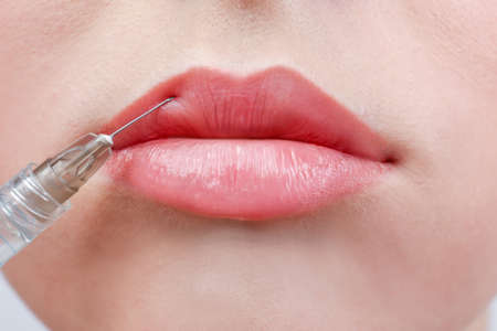 Beautiful young woman receiving filler injection in lips, closeup