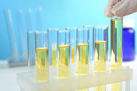 Doctor hand with test tubes, closeup Stock Photo