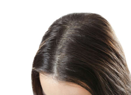 Young woman with hair loss problem on white background, closeup Stock Photo