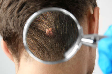 Dermatologist with magnifier examining patient in clinic, closeup
