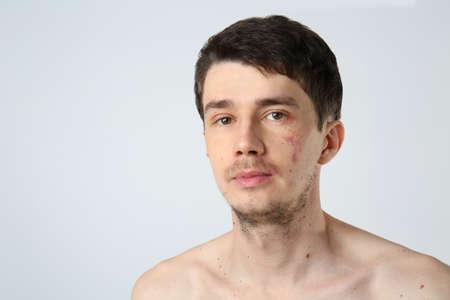 Jonge man met moedervlekken op lichte achtergrond