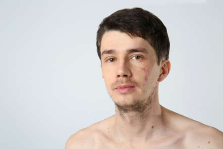 Young man with birthmarks on light background Stock Photo