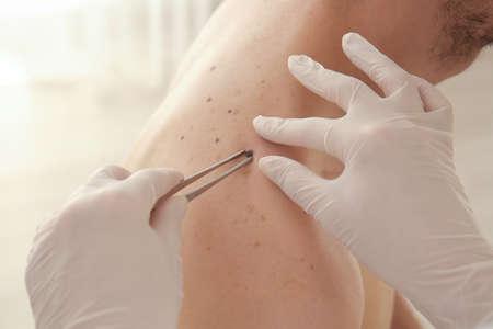 Dermatologist removing birthmark in clinic, closeup