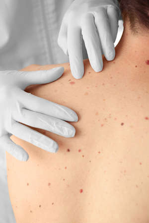 Dermatoloog die patiënt in kliniek onderzoeken
