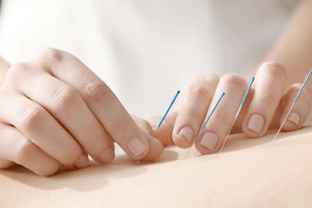 Young woman undergoing acupuncture treatment, closeup