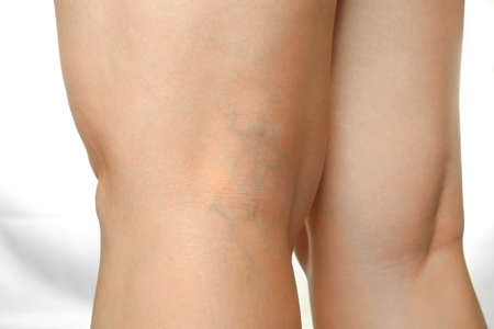 Womans legs with varicose veins on white background, closeup