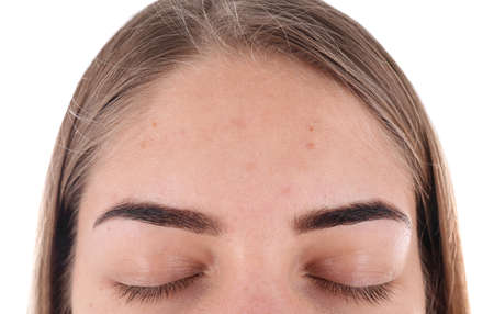 Young woman with acne problem on white background Stock Photo