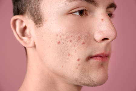 Young man with acne problem on color background 免版税图像