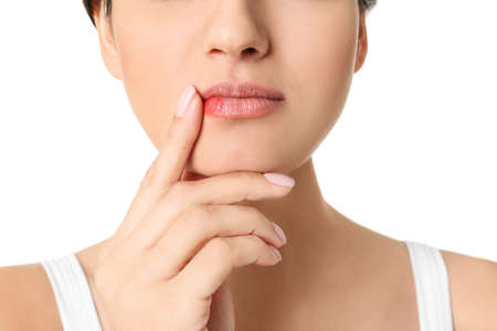 Woman with cold sore touching lips on white background, closeup