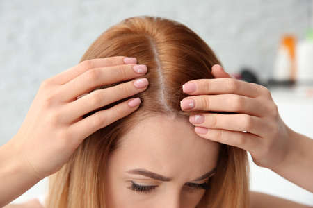 Young woman with hair loss problem, closeup Stock Photo