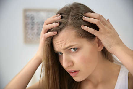 Young woman with hair loss problem indoors Stockfoto