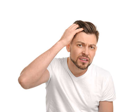 Young man with hair loss problem on white background