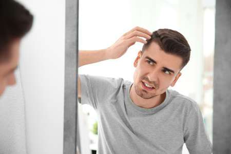 Young man with hair loss problem looking in mirror indoors Stock Photo