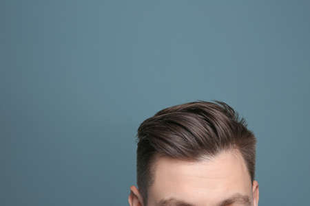 Young man with hair loss problem on color background