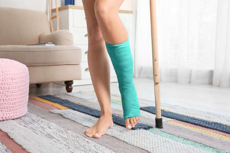 Young woman with crutch and broken leg in cast at home Stockfoto