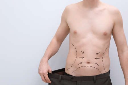 Young man with marks on belly for cosmetic surgery operation on light background Stock Photo