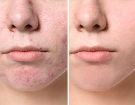 Jeune femme avant et après le traitement de l'acné, gros plan. Concept de soins de la peau Banque d'images