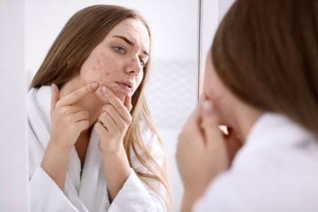 Young woman with acne problem near mirror in bathroom Фото со стока