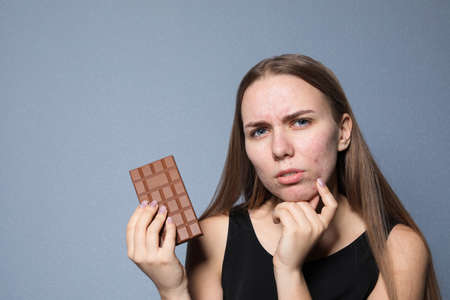 Young woman with acne problem holding chocolate bar on color background. Skin allergy