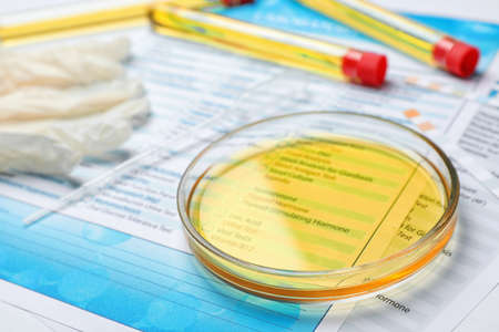 Glass dish with urine sample and test forms on table. Urology concept