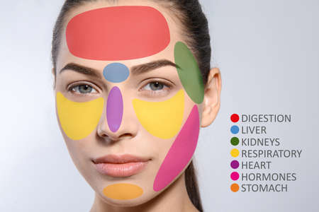 Young woman with acne face map on grey background. Skin care and beauty