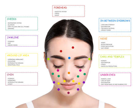 Young woman with acne face map on white background. Skin care and beauty