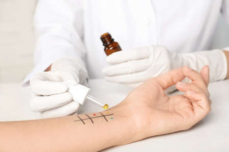 Doctor making allergy test at table, closeup