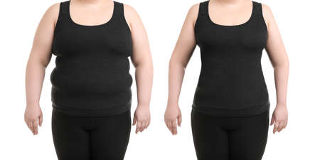 Young woman before and after liposuction operation on white background, front view. Cosmetic surgery Фото со стока
