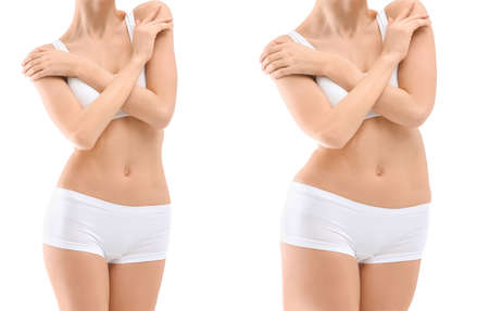 Young woman before and after liposuction operation on white background, front view. Cosmetic surgery 스톡 콘텐츠