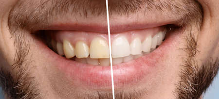 Smiling man before and after teeth whitening procedure, closeup Stock Photo