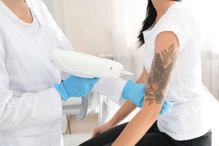 Woman undergoing laser tattoo removal procedure in salon 스톡 콘텐츠