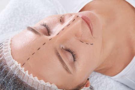 Rijpe vrouw met vlekken op het gezicht voor cosmetische chirurgie in de kliniek Stockfoto