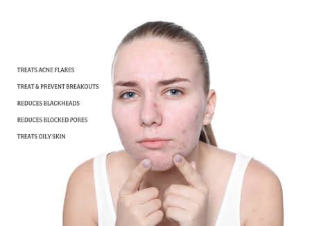 Portrait of young woman with problem skin and list of anti-acne cosmetic effects on white background