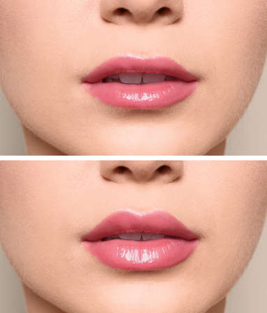 Woman before and after lips augmentation procedure, closeup. Cosmetic surgery 版權商用圖片