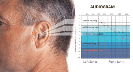 Mature man with symptom of hearing loss and audiogram on white background. Medical test 免版税图像