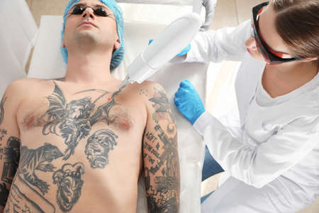 Man undergoing laser tattoo removal procedure in salon