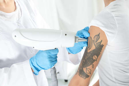 Woman undergoing laser tattoo removal procedure in salon, closeup Stock Photo - 112345719