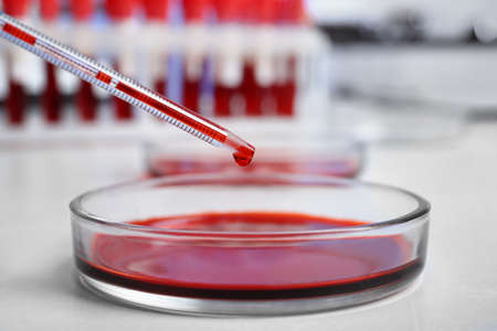 Pipetting blood into Petri dish for analysis on table in laboratory, closeup